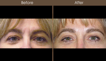 Before & After Eyelid Surgery In NYC