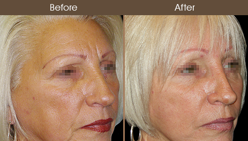 Browlift Surgery Before And After