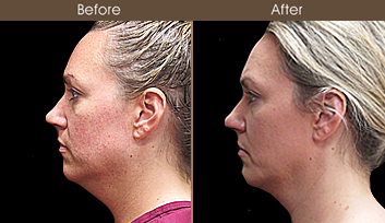 Before & After Scarless Face Lift Surgery