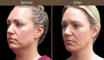 Before And After Scarless Face Lift Surgery