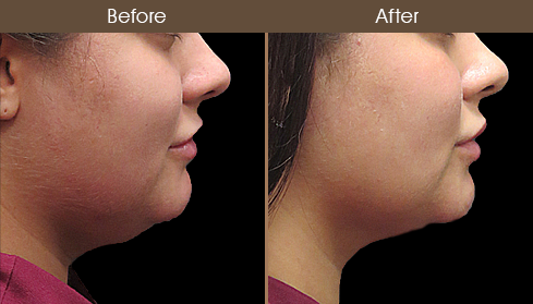 Before And After Scarless Necklift