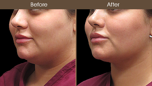 Scarless Necklift Surgery Before & After
