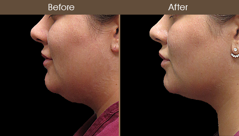 Scarless Necklift Surgery Before And After