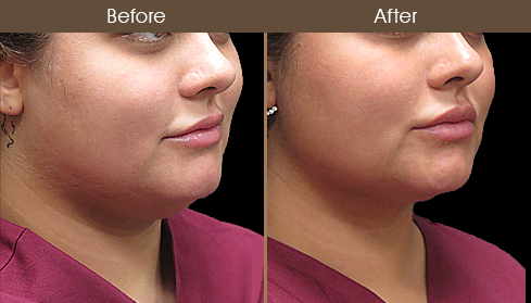 Before & After Scarless Necklift