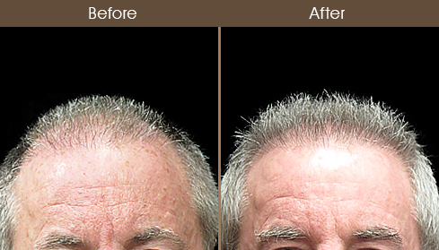 Before And After Hair Restoration Treatment
