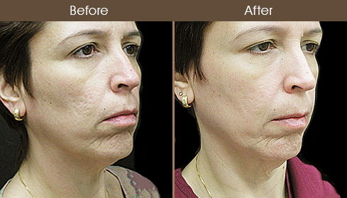 Laser Necklift Treatment Before And After