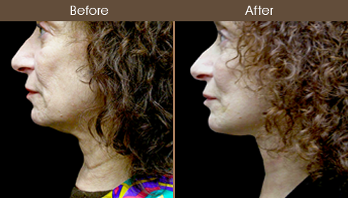 Neck Lift Surgery Results