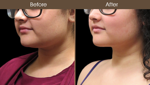 Scarless Necklift Before & After