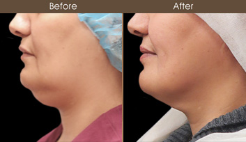 Scarless Facelift Before & After