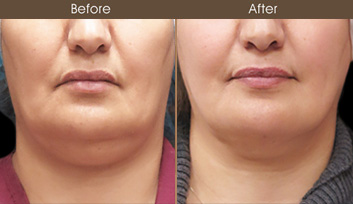 Laser Neck Lift Surgery Before And After