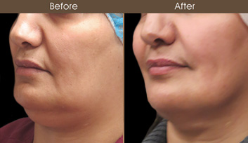 Laser Neck Lift Surgery Before & After
