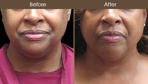 Laser Neck Lift Before And After