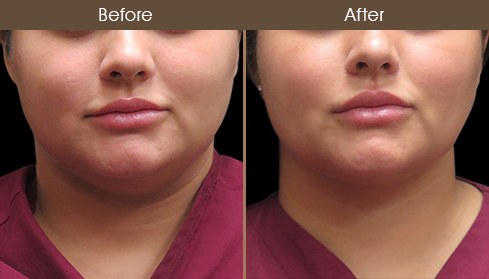 Laser Necklift Treatment Before & After
