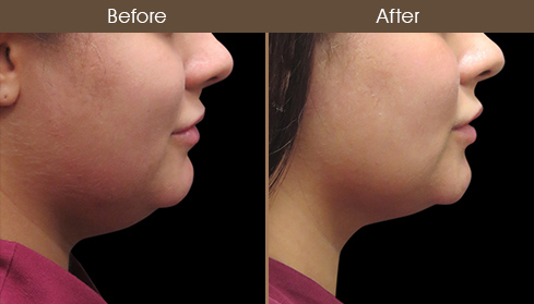 Laser Necklift Treatment Results