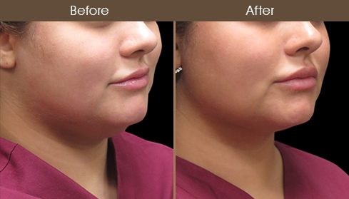Laser Necklift Surgery Before And After