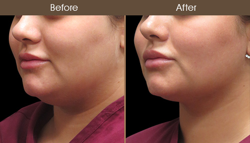 Laser Necklift Surgery Results