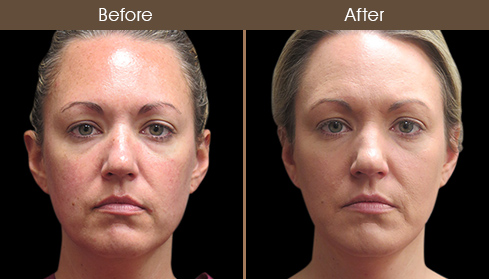 Before And After Laser Necklift