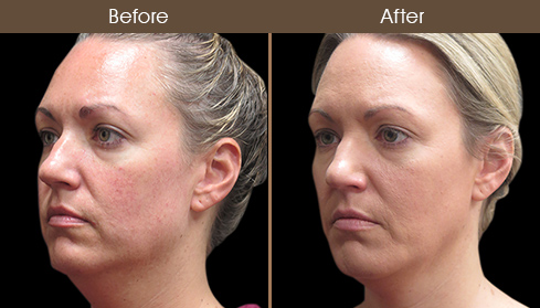 Before & After Laser Necklift