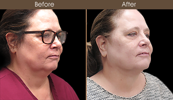 Laser Necklift Before & After In NYC