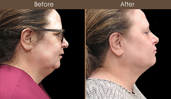 Laser Necklift Results In NYC