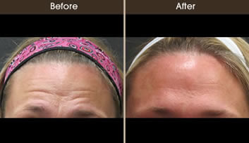 Botox Cosmetic Results