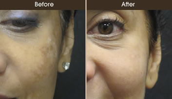 Sun Damage Treatment Results