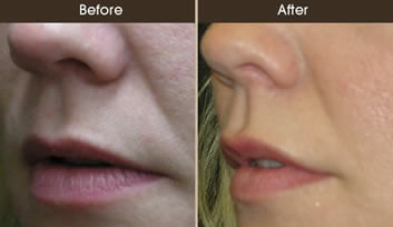 Lip Augmentation Before And After Quarter View