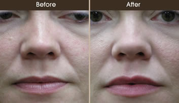 Lip Augmentation Before And After Front View