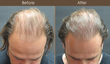 Hair Restoration In NYC Before & After