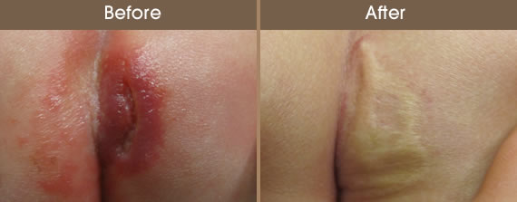 Before And After Vascular Lesion Treatment