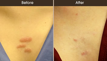 Scar Revision New York Scar Treatment