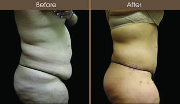 Post-Bariatric Surgery Before And After