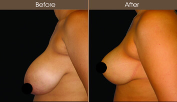 Breast Reduction Before And After Side View