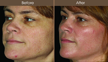 Sun Damage Treatment Before And After Quarter View