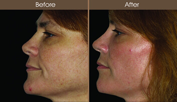 Sun Damage Treatment Before And After Side View
