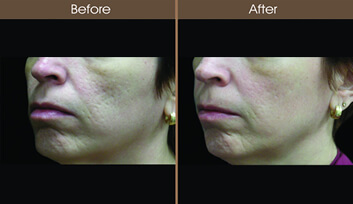 Skin Resurfacing Before And After Left Side View