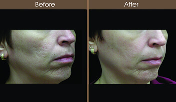 Skin Resurfacing Before And After Right Side View