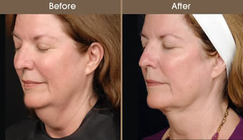 LazerLift® Before And After