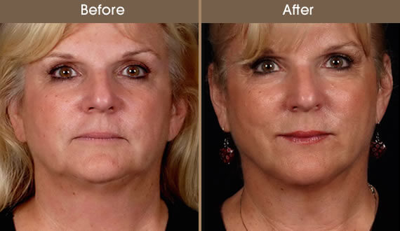 Laser Facelift Before And After
