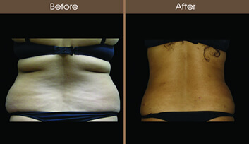 Laser Lipo Before And After