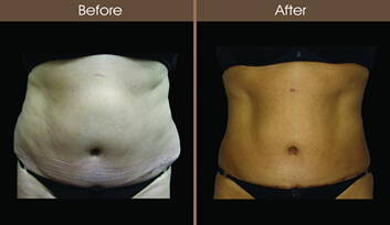 Laser Liposuction Before And After