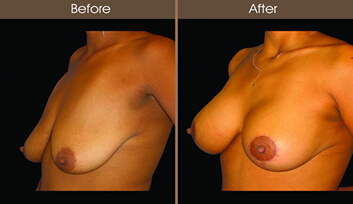 Breast Lift Before And After Quarter Image