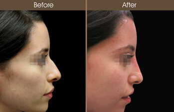 pretty nice 54290 3fb10 Non-Surgical Rhinoplasty Before And After