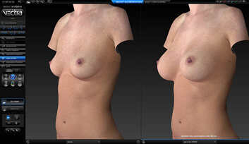 Vectra 3D Imaging Before And After