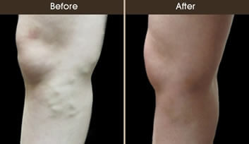 Sclerotherapy Results