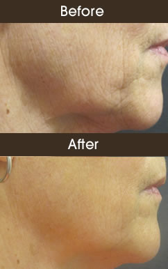 Before And After Skin Tightening