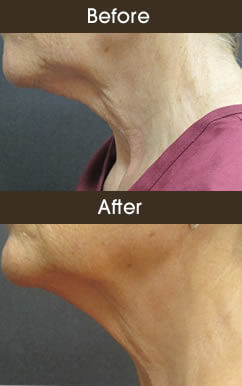 Skin Tightening Results