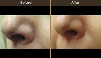 Red Spot Treatment Before And After