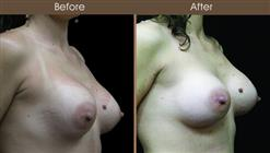 Breast Reconstruction Before And After Right Quarter Image