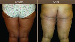 Thigh Lift Before And After Back View